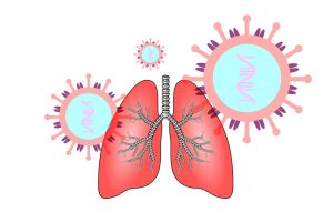 DEGUM empfiehlt Lungenultraschall bei Verdacht auf COVID-19-Pneumonie