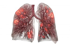 Schonendere Beatmung: Digitales Modell der Lunge zur Reduzierung der Todesfälle bei COVID-19 und ARDS