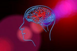Tag gegen den Schlaganfall: COVID-19 kann einen Hirninfarkt begünstigen