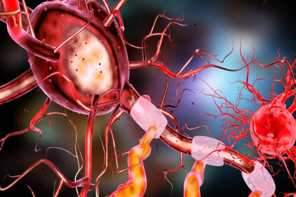 Neuro-COVID: Nicht nur neurologische Begleitsymptome, sondern auch neurologische Folgeerkrankungen sind möglich