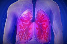 Warum auch Nichtraucher an COPD erkranken können