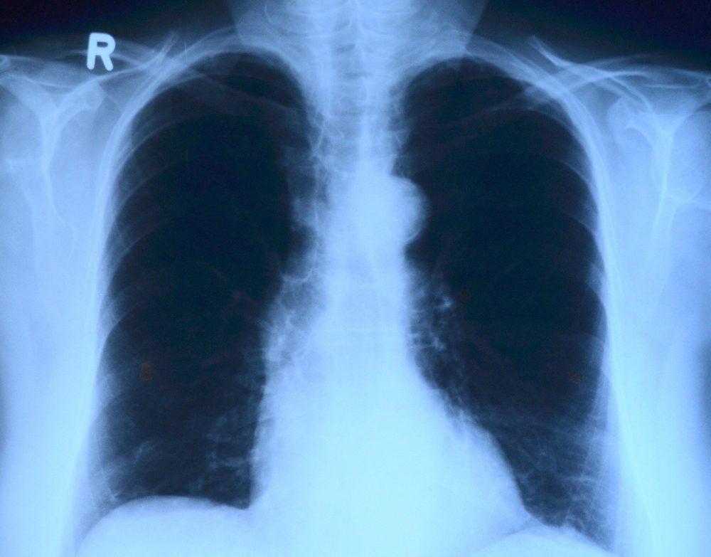 Tuberkulose in Zeiten von SARS-CoV-2 und COVID-19; was Betroffene und ehemalige Patienten wissen müssen