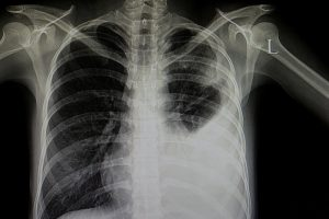 Ist es Corona oder nicht: Studentin entwickelt Röntgen-Software für COVID-19-Diagnose