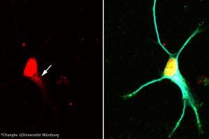 Signalweg in Nervenzellen entschlüsselt