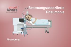 Jetzt online schulen: Absaugung im Kontext beatmungs-assoziierter Pneumonien