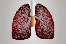 Forschungsprojekt evaluiert Verfahren zur Lungenkrebs-Früherkennung